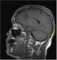 Brain MRI 131666.png