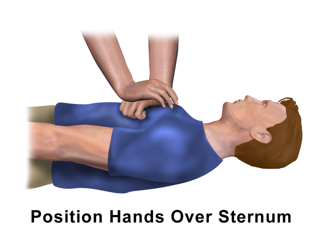 File Cpr Adult Chest Compression Png