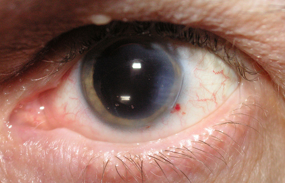 Как лечить народными способами ячмень на глазу