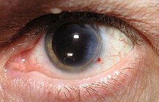 CataractOperated.jpg