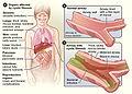 Cysticfibrosis01.jpg