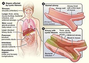 cystisk fibrose