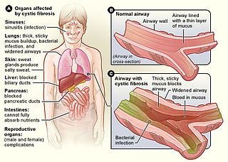 Cystic fibrosis Autosomal recessive disease mostly affecting the lungs