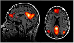 Default mode network - fMRI scan showing regions of the default mode network