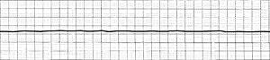 Flatline - Flatlined ECG lead