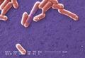 Escherichia coli O157-H7 CDC ID-10071.tif