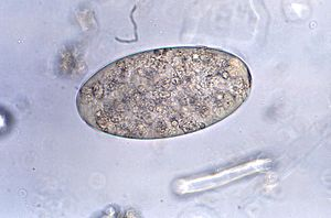 Fasciolopsis - Fasciolopsis buski egg
