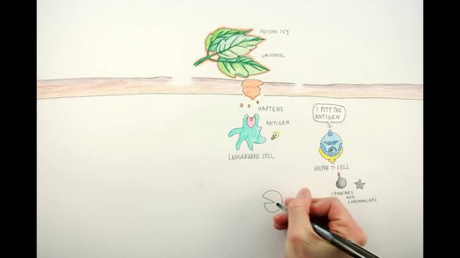 image from video How Poison Ivy Works from USA CDC NIOSH, select to view video