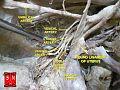 Hypogastric artery.jpg