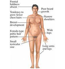 Symptomy Klinefelterova syndromu