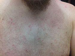 Små røde prikker i huden