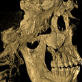 Missing roots after removal of severely impacted wisdom tooth CT scan - upper left.jpg