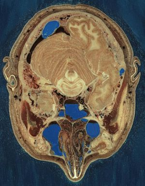 Human head - Cryosection through the male head