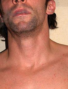 مرد ها گردن - ویکیپدیا، دانشنامهٔ آزاد