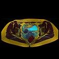 Pelvic MRI 06 11.jpg