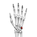 Pisiform bone (left hand) 01 palmar view.png