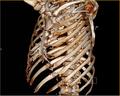 Rippenserienfraktur 3D CT.PNG