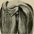 Surgical and obstetrical operations (1907) (14783227492).jpg
