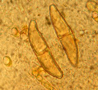 Telium - Micrograph of two teliospores from telia of Gymnosporangium clavariiforme
