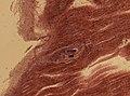Trichinella spiralis (YPM IZ 093428).jpeg