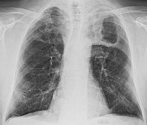 Tuberculosis image 1