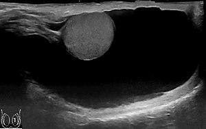 Ultrasonography of hydrocele.jpg
