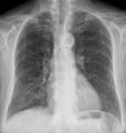 16-02-Lungenoedem Verlauf nach 6 Tagen.png