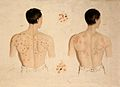 A man with a skin disease on his back, and another; and two Wellcome V0009635.jpg