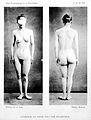 Asymetrie du corps chez une epileptique' Wellcome L0020549.jpg