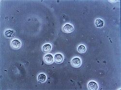 Bacteriuria pyuria 4.jpg
