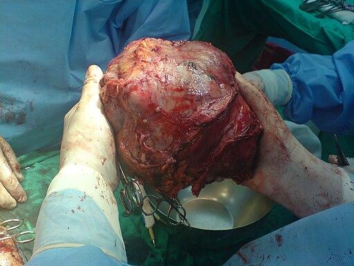 Big Liver Tumor