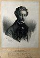 Carl Baunscheidt. Lithograph by H. Meijer, 1860. Wellcome V0000410.jpg