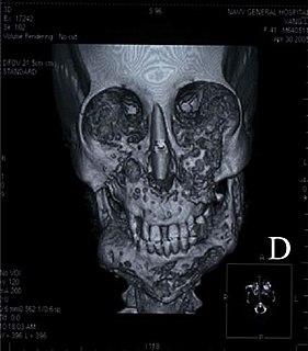 Cherubism Medical condition