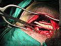 Cirurgia Ortopédica.JPG