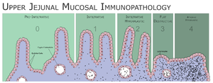 """Caeliac Disease, Upper Jejunal Mucoasl Immunopathology"""