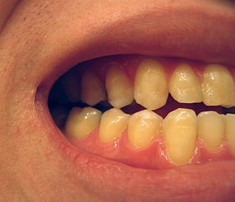 Cusp (anatomy) - The teeth of the right side of the mouth, shown contacting the teeth in the opposing jaw with their cusp tips.