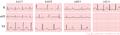 De-Lqts1-3 (CardioNetworks ECGpedia).png