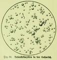 Die Frau als Hausärztin (1911) 036 Tuberkelbazillen in der Kuhmilch.png