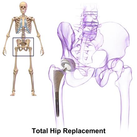 Write my prothesis hip