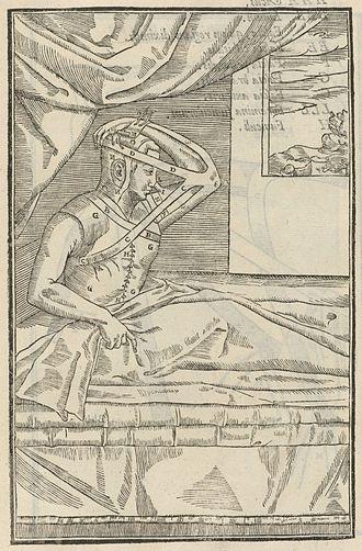 "Gaspare Tagliacozzi - Original illustration of the now-called ""Italian method""."