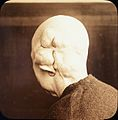 Lantern slide; Wens (head); malignant? Wellcome L0028446.jpg