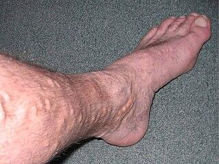 Varicose veins Vein disease