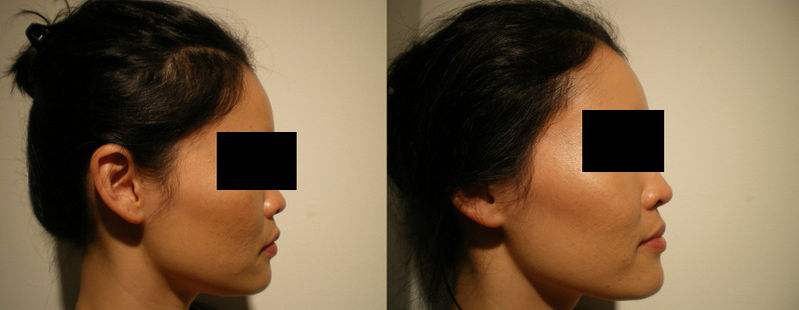 Non-surgical rhinoplasty - The complete information and online sale