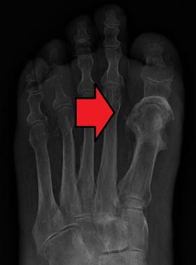 Osteomyelitis - Wikipedia, the free encyclopedia