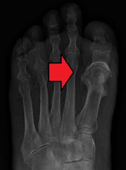 OsteomylitisMark.png
