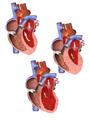 Progression of Cardiomyopathy.png