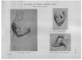 Richer - Anatomie artistique, 2 p. 138.png