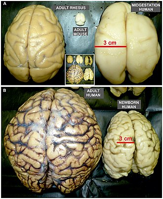 Gyrification - Image: Size proportion of mature rodent and non human primate brain as well as developing and mature human brains fnana 08 00050 g 004