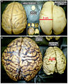Size proportion of mature rodent and non-human primate brain as well as developing and mature human brains fnana-08-00050-g004.jpg