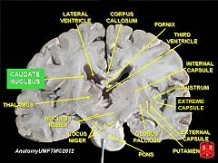 nucleus caudatus